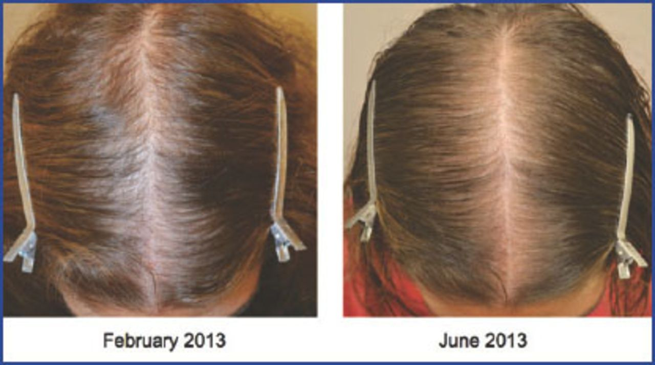 Medical Therapy For Female Pattern Hair Loss Fphl Hair Transplant Forum International