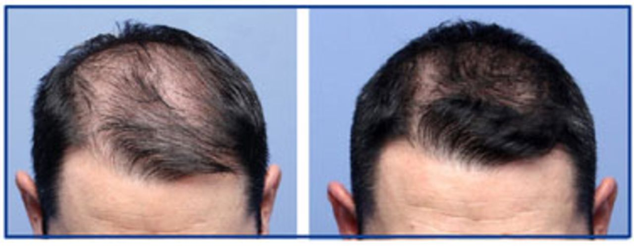 Hair progesterone growth and Does Progesterone