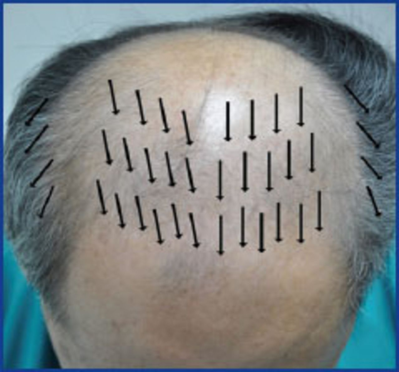 Naturally Occurring Hairlines In Orientals Of Southeast And East Asian Origin And Their Application In Hair Restoration Surgery Hair Transplant Forum International