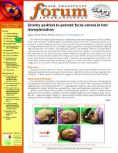 International Society of Hair Restoration Surgery: 19 (3)